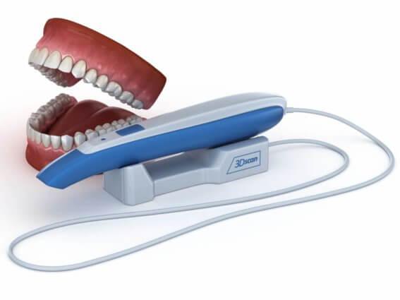 3D Scanner für Intraoral Zähne