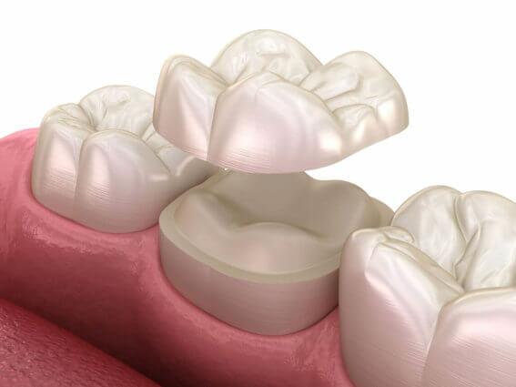 Fixieren des Keramikinlays auf dem Zahn