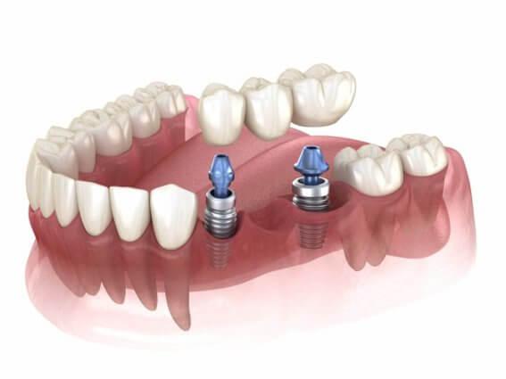 Zahnbrücke unterstützt durch Implantate