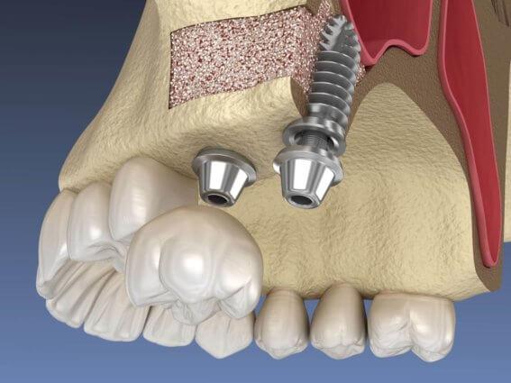 Sinus Lift Chirurgie - Implantatinstallation
