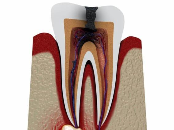 Entzündeter Zahnnerv mit einer zu entfernenden Zyste